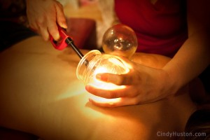 Fire Cupping - Cindy Huston
